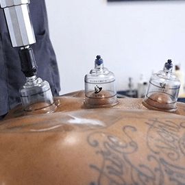 IASTM + Sports Massage + Dry Cupping